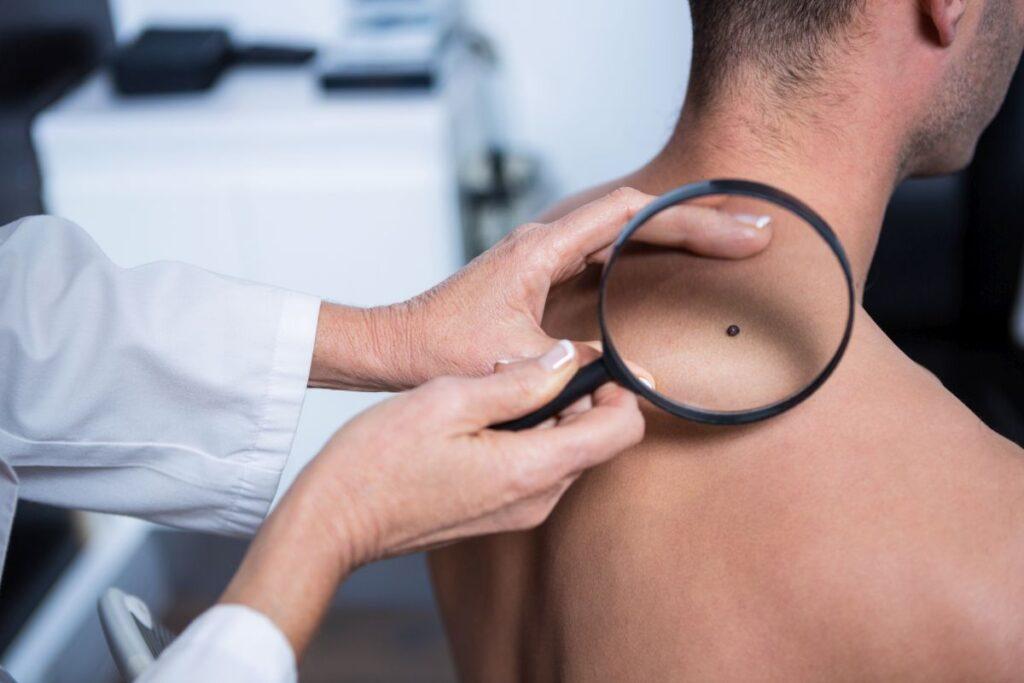 Problemy skórne – warto zgłosić się do lekarza specjalisty – dermatologa